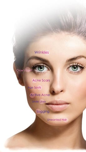 acne scars skin treatment